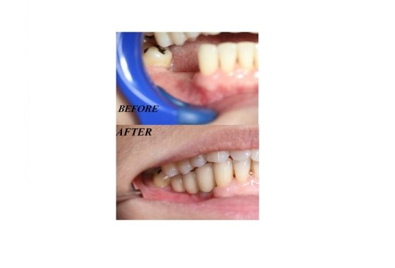 ement :::: Hospital Lam Wah Ee - Single Tooth Replac